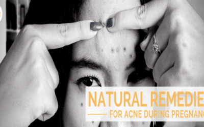Natural Remedies for Acne During Pregnancy
